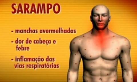 Estado confirma caso de sarampo importado em São Luiz Gonzaga