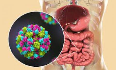 Secretaria da Saúde do RS emite alerta para surto de doença que causa diarreia aguda
